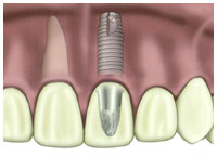 A diagram of a dental implant on a front tooth