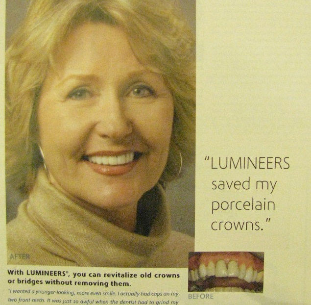An ad encouraging dentists to place Lumineers over crowns.