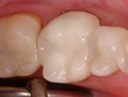 all-porcelain crown on back tooth
