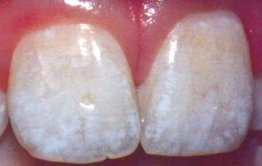 Close-up of fluorosis stained teeth