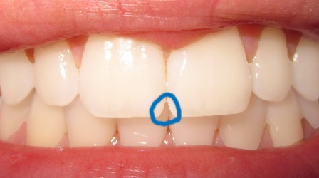 incisal-embrasure-sm