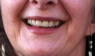 eileen-original smile