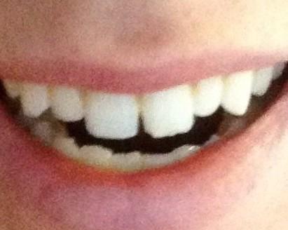 before dental bonding error