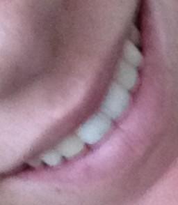 dental bonding error - color mismatch
