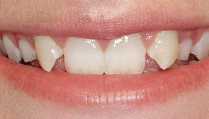 missing lateral incisors after orthodontics