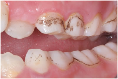 extrinsic teeth stains
