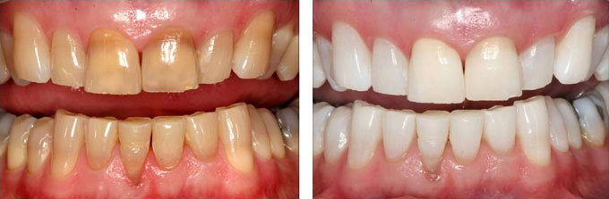 intrinsic teeth stains, removed by bleaching