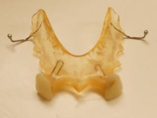flipper partial replacing lateral incisors