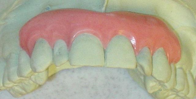 gingival mask prosthesis