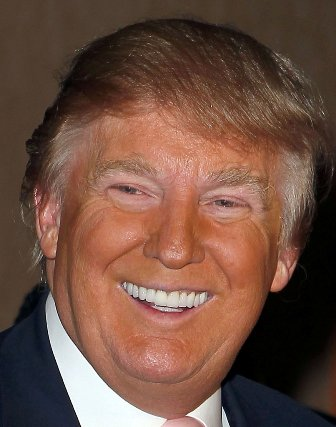 Donald Trump has porcelain veneers