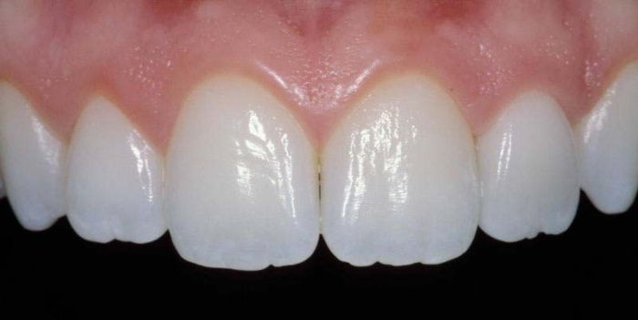 porcelain crown on a front tooth