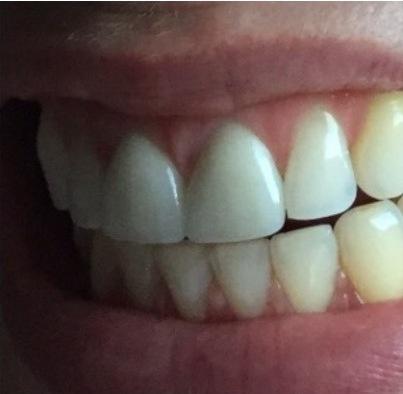 Tilo's front teeth crowns