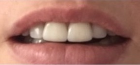 Tilos-front-teeth-crowns-2