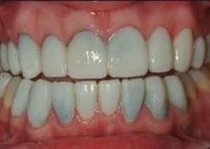 Leaking porcelain veneers