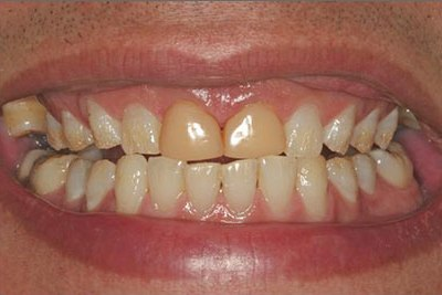 dental bonding stained yellow