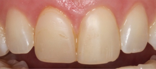 dental bonding with yellow staining