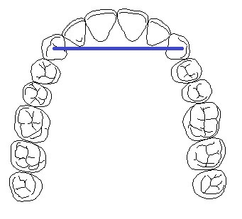 cantilever dental bridge