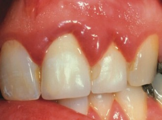 thick crowns with puffy gums
