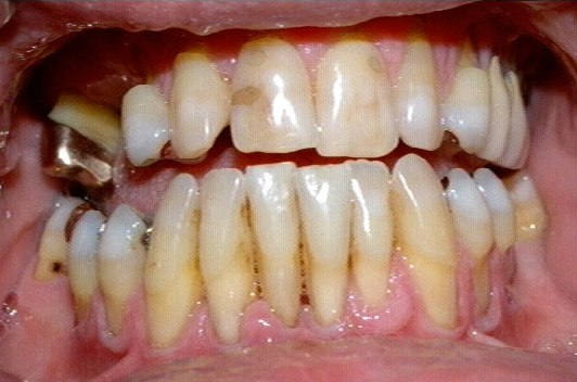 Photograph of severe gum disease with most of the root showing on the lower front four teeth