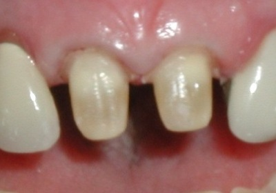 two front teeth, prepared for porcelain crowns