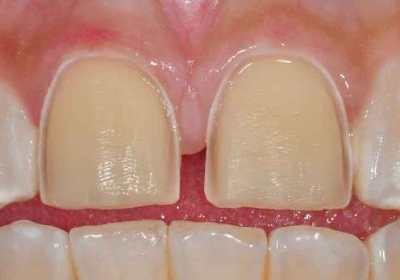 two front teeth, prepared for porcelain veneers