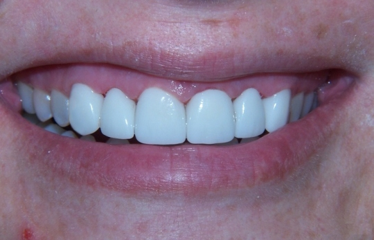 crowns on 6 anterior teeth, but the aesthetic zone is 10 teeth wide