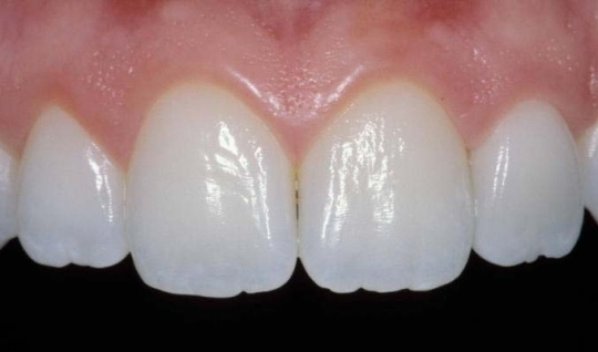 photo of four front teeth showing the texture and sparkle of porcelain crowns