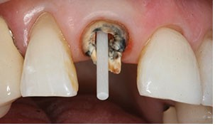 close-up photo of a broken down lateral incisor tooth with a fiberglass post fitted into the root canal space