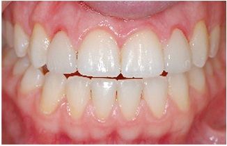 close-up photo of a smile showing gum inflammation on the lateral incisors