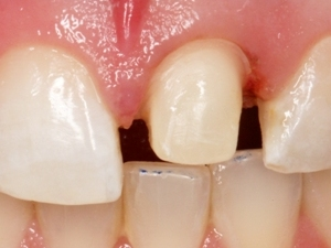 photo of a front tooth that has been prepared for a crown, with 2 mm of enamel and dentin removed all the way around, leaving just a stub