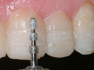 photo of a front tooth being prepared with a depth-limiting diamond, removing grooves to a depth of 0.5 mm