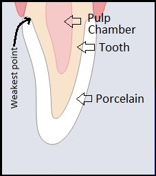 cross section diagram of a front tooth with a crown