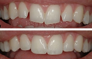 two photographs of maxillary anterior teeth. The top shows teeth with jagged edges. The bottom shows them shaped to a more pleasing smile.