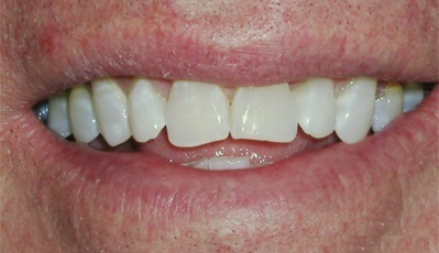 close-up photo of a smile showing front teeth with uneven incisal edges