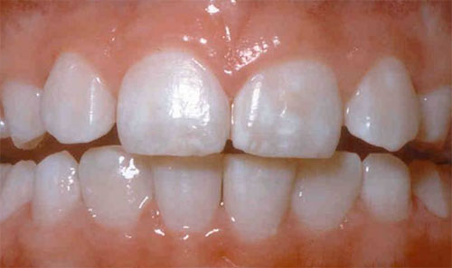 two front teeth showing mild fluorosis staining with slight white spots and a little brown