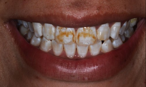 photo of front teeth with severe fluorosis showing ugly brown spots and white spots