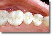 amalgam fillings replaced with composite fillings
