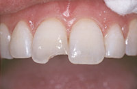 dental bonding to repair chip
