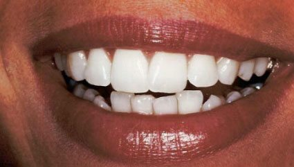 Teeth out of alignment, before dental bonding