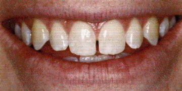 Example of a tooth gap before bonding. Patient of Dr. David Hall.