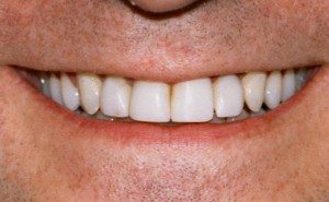 After tooth bonding work by Dr. Thordarson