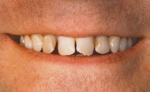 Before tooth bonding by Dr. Thordarson