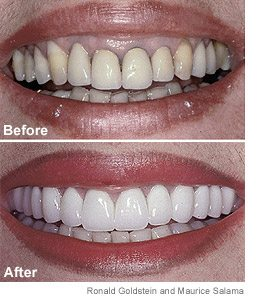 Before and after of botched dental work