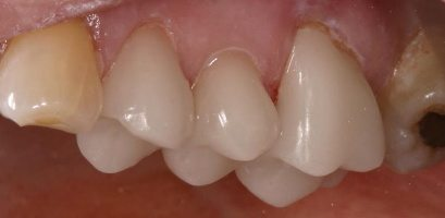 After photograph of beautiful one visit CEREC crowns
