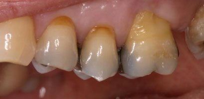 Before CEREC Crowns