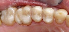 After - white fillings replaced by a skilled cosmetic dentist