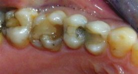 Dentist placed white fillings that are failing