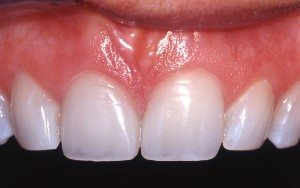After - Beautiful porcelain crown replacement on front tooth