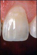 Dental bonding - after