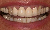 Before - Porcelain-fused-to-metal crowns.